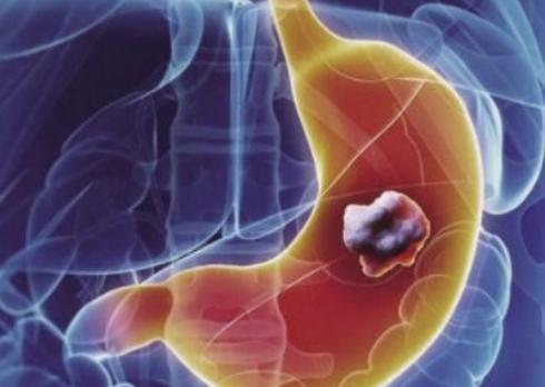 如何逆转胃癌的癌前病变