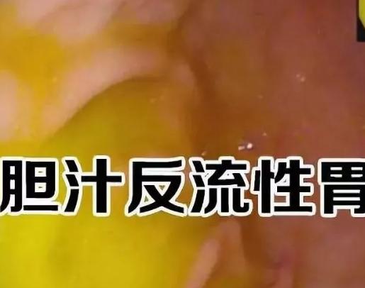 胆汁反流性胃炎是胃病,还是胆囊病?