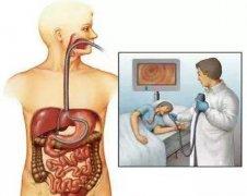 """这几种病在胃镜面前""""无所遁形""""!"""