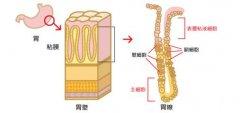 胃病为什么久治不愈?原因竟是胃粘膜受损