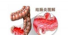 告诉你几招及早预防结肠炎!