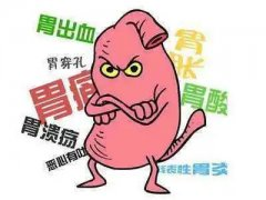 通辽胃肠病医院,看看这些胃肠疾病征兆你有吗